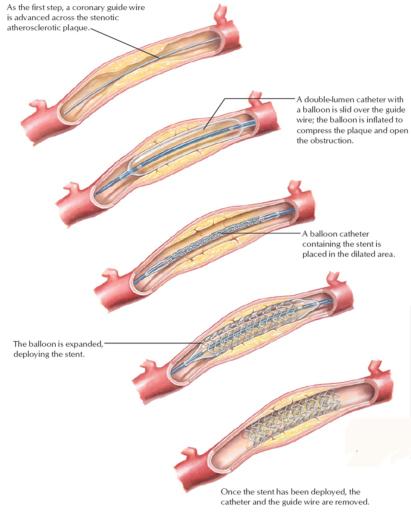 percutaneous coronary